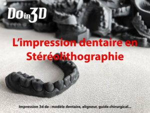 impression 3d sla dentaire